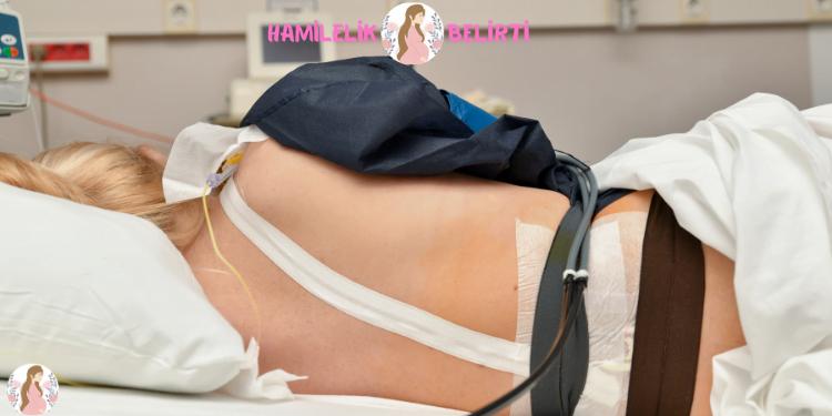 Epidural, doğum yapan veya sezaryen doğum ameliyatı geçiren kadınlar için bir ağrı kesici türüdür. Doğum sancısını yönetmeye yardımcı olur.